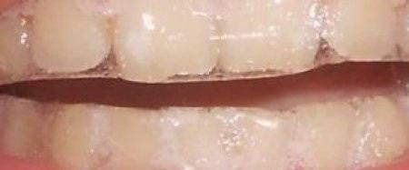 Как пользоваться отбеливающими полосками для зубов Crest 3D white