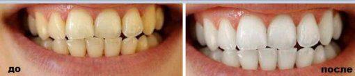 Мой опыт отбеливания зубов c использованием Crest 3D white