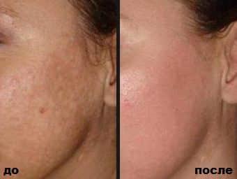 Мой опыт использования отбеливающего крема для кожи