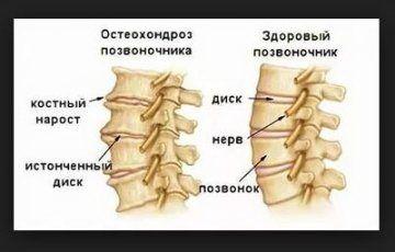 Как действует Osteo Health
