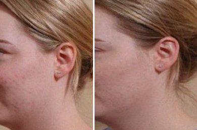 Мой опыт применения геля от шрамов и рубцов Derma-Cote