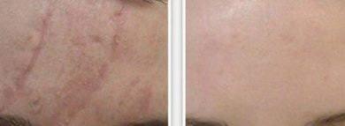 Мой опыт применения геля от рубцов Derma-Cote