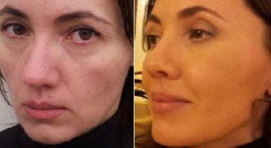 Мой опыт использования генерирующего геля для кожи VOM