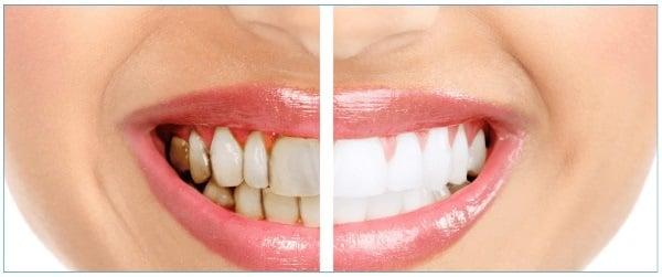 White Mint отбеливание для зубов