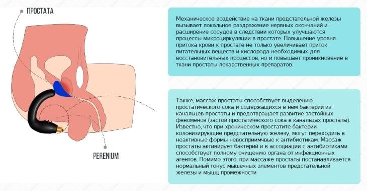 Принцип работы Prostata help MP-1