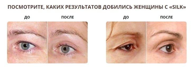 Результат до и после применения крема Silk