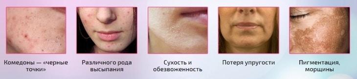 Последствия неправильного ухода за кожей