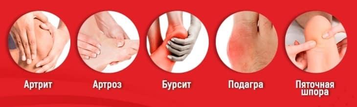 Кто наиболее подвержен заболеванию суставов