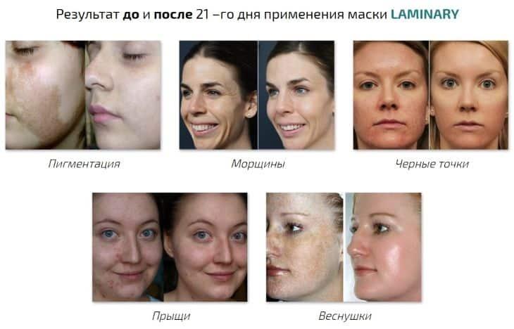 Какой результат вы получите от применения Laminary