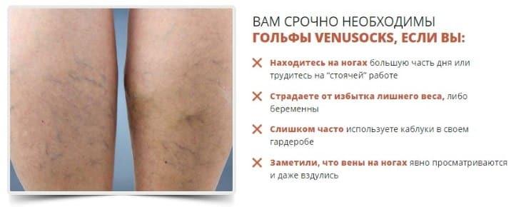 Причины, по которым следует использовать VenuSocks
