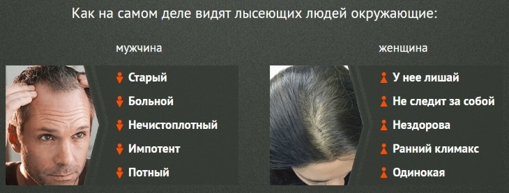 Залысины и выпадающие волосы – это старость