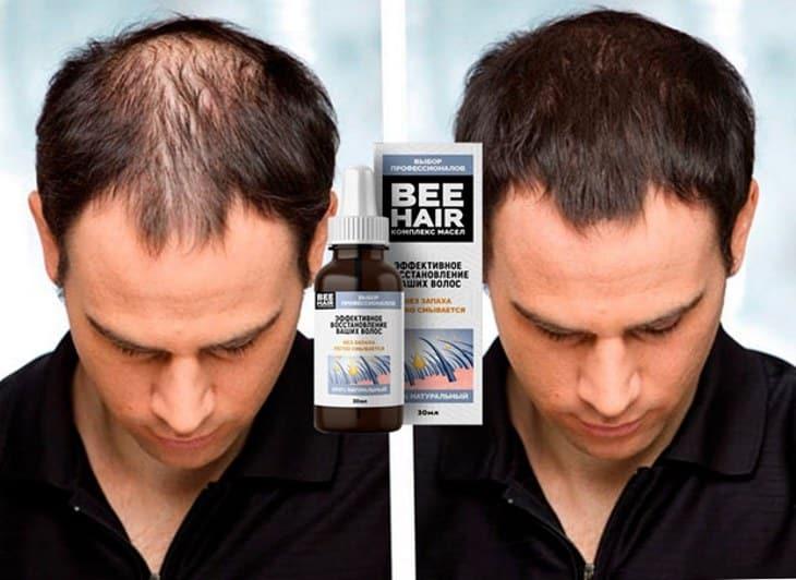 Верните силу своим волосам вместе с BeeHair