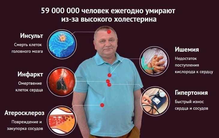 59 000 000 человек ежегодно умирают из-за высокого холестерина