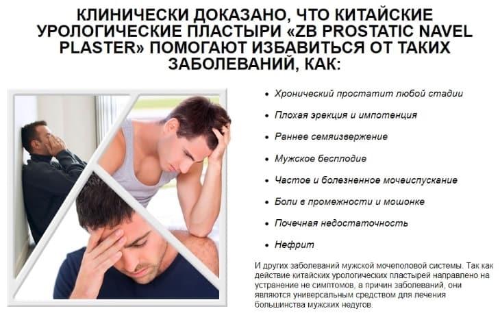 Что помогают вылечить пластыри «ZB Prostatic Navel Plaster»