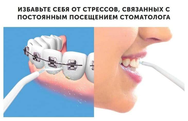 Как избежать стрессов, во время походов к стоматологу с помощью Power Floss