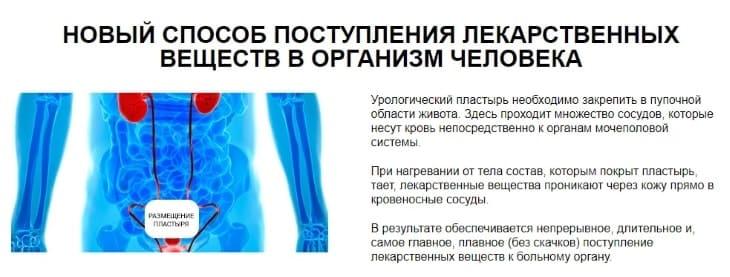 Какой эффект вы получите от приема «ZB Prostatic Navel Plaster»
