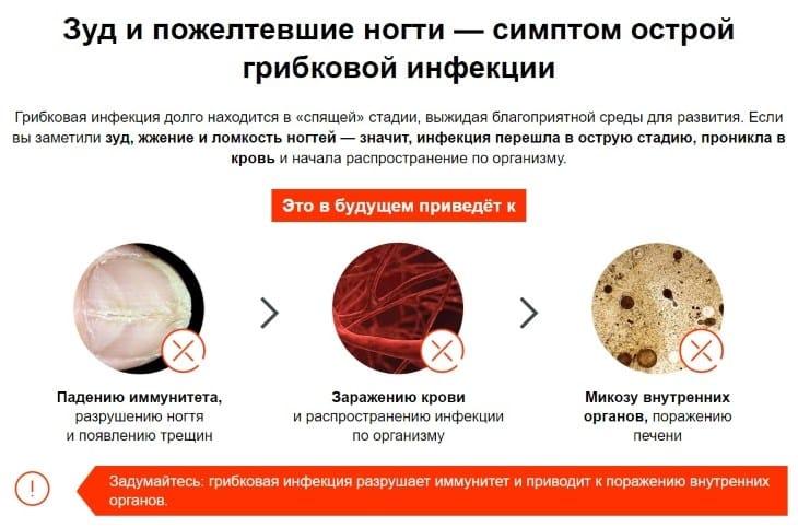 Зуд и пожелтевшие ногти — симптомы острой грибковой инфекции