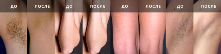 Результат до и после использования жидкого лазера
