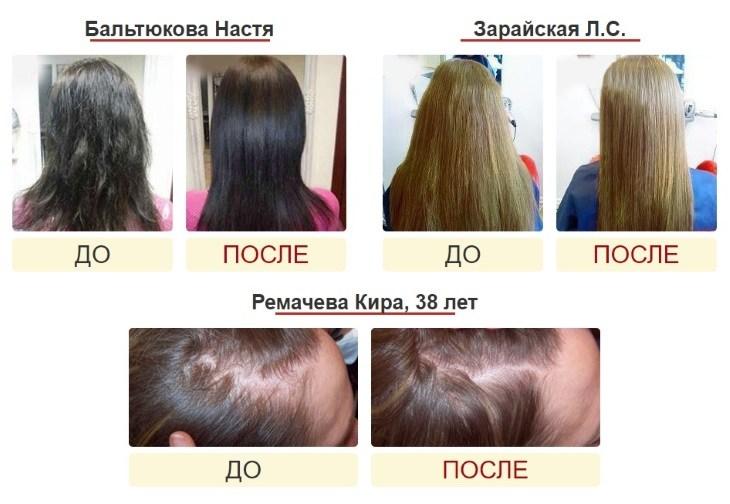 Фото до и после использования Bliss Hair