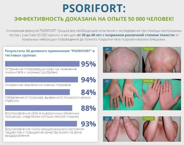 Результаты клинических исследований средства Psorifort