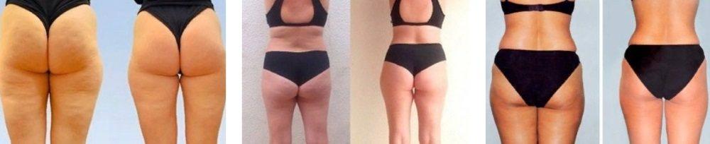 Результаты от использования Beauty and Body Firming