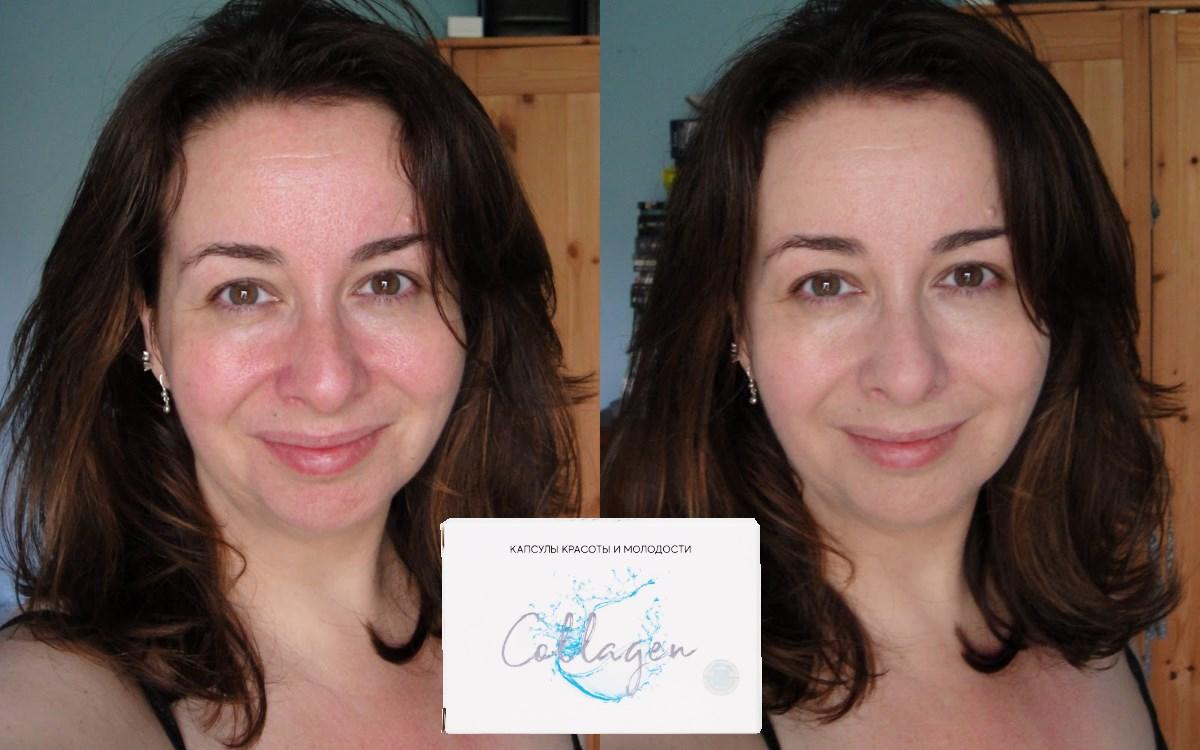 Фотографии до и после применения Collagen